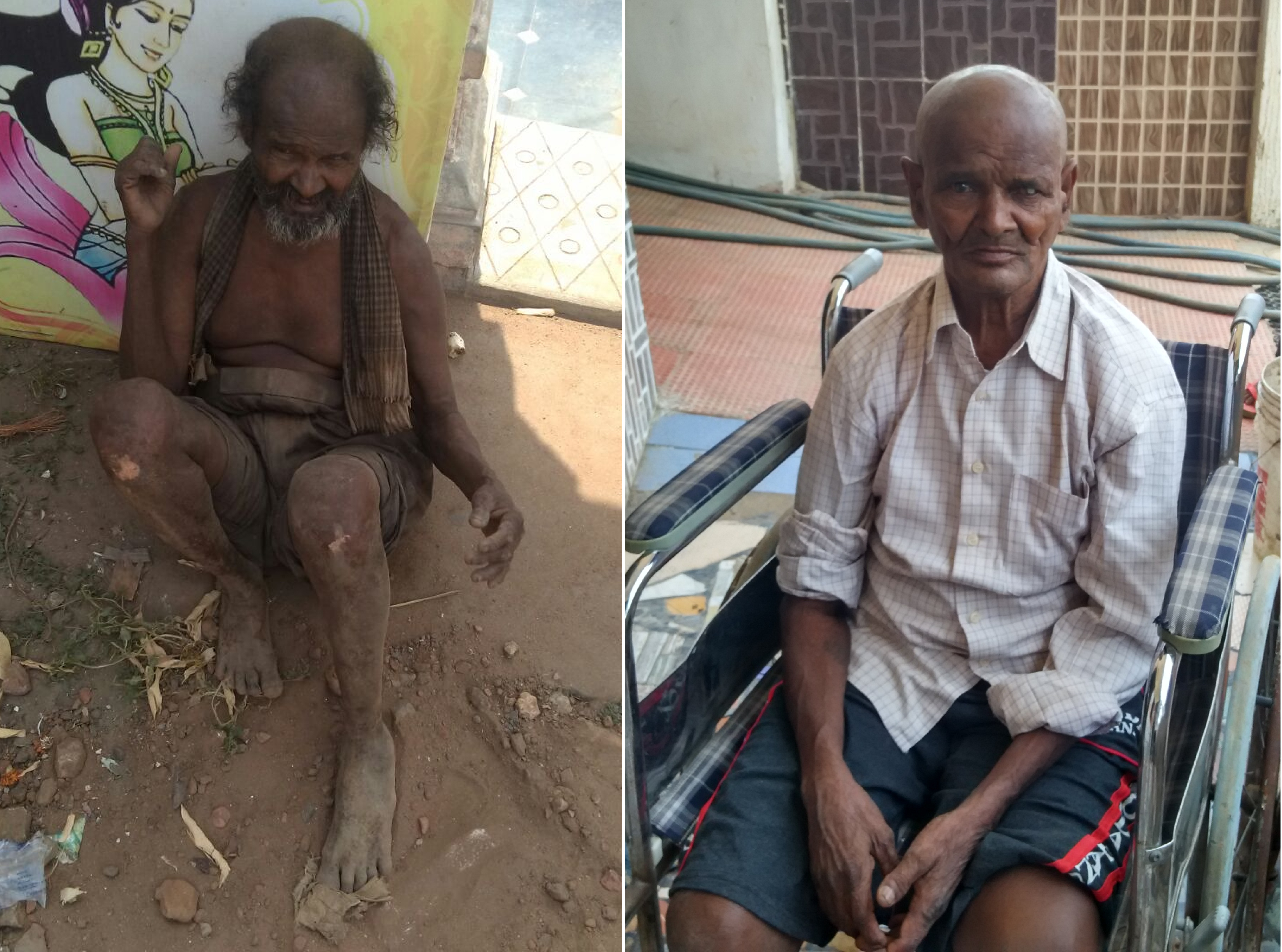 Anji a injured destitute beggar from Amalapuram admitter at Sweet Home Pendurthy  Vizag